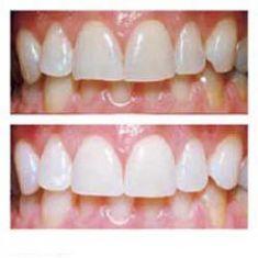 Bielenie zubov - Fotka pred - MUDr. Křemenová Silvia