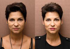 Odstranění vrásek pomocí botulotoxinu - U klientky byla pomocí botulotoxinu odstraněna asymetrie obočí (levé obočí bylo lehce snížené oproti pravému) a redukovány výrazné vrásky na čele a mezi obočím. Plný efekt ošetření je viditelný do 7 dnů, na fotografiích stav před a 1 měsíc od ošetření.