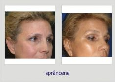 Brow lift - Photo before - Dr. Lucian Fodor PhD