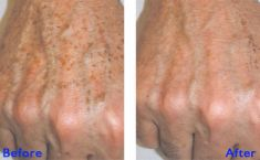 Fractional Laser Resurfacing - Photo before - Azim Jahangir Khan M.D.