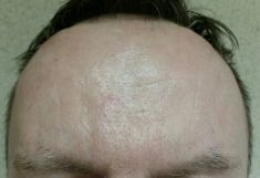 Botulinum toxin - Wrinkle Removal - Photo before - Dr. Maletić Ana