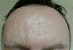 Botulinum toxin - Wrinkle Removal - Photo before - Dr. Maletić Ana
