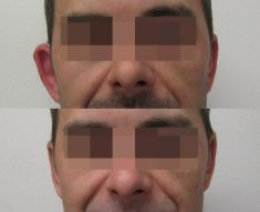 Operace uší (Otoplastika) - fotka před - MUDr. Evžen Trupar Ph.D.