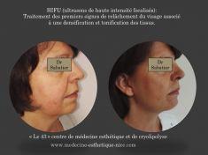 HIFU thérapie (lifting médical) - Cliché avant - Centre de médecine esthétique et de cryolipolyse