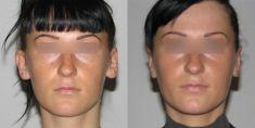 Korekcja uszu (Otoplastyka) - Zdjęcie przed - dr Anna Olender