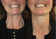 Botulinum toxin - Wrinkle Removal - Photo before