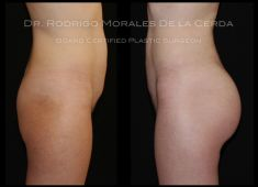 Enlargement and shaping of buttocks and hips - Photo before - Dr. Rodrigo Morales De la Cerda