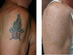 Rimozione tatuaggi - laser - Foto del prima - Dott. Aurelio M. Cardaci