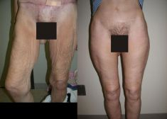 Thigh Lift Surgery - Photo before - Diana Breister Ghosh, M.D.