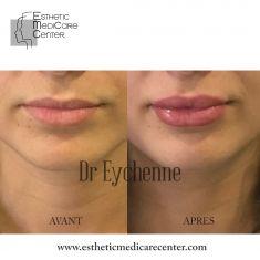 Augmentation des lèvres (acide hyaluronique) - Cliché avant