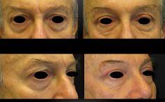 Blefaroplastica inferiore - Foto del prima - Dott. Aurelio M. Cardaci