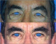 Eyelid surgery (Blepharoplasty) - Photo before - Dr Alexandre Mertens