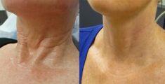 PRP – Plazma terapie (Platelet Rich Plasma) - fotka před - Klinika estetické medicíny Petra Clinic
