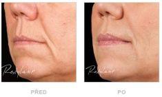 Restylane® - fotka před - Klinika YES VISAGE - klinika estetické medicíny a plastické chirurgie