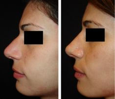 Rinoplastica - Riduzione cartilagine settale