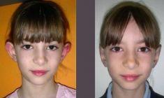 Operazione orecchie (Otoplastica) - Foto del prima - Dr. Luigi Mazzi