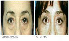 Mandala Beauty Clinic - Photo before - Mandala Beauty Clinic