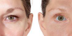 Operácia očných viečok (Blepharoplastika) - Fotka pred - GÉVÉ Klinika