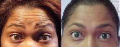 Botox/Dysport - Eliminar arrugas - Foto Antes de - Dr. Basilio Henríquez Tejeda