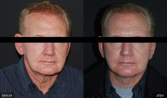 Facelift - Photo before - BareAesthetics Cosmetic Surgery Clinics