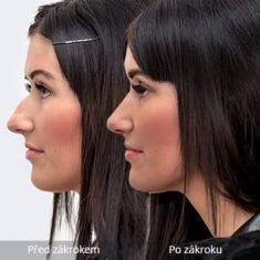 Rhinoplasty (Nose Job) - Photo before - MUDr. Peter Ondrejka - MEDICOM Clinic