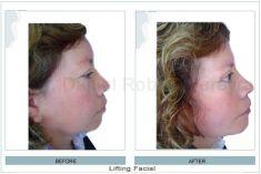 Lifting facial - Foto Antes de - Dr. Daniel Robles Pereyra