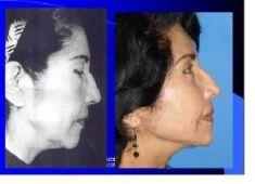Lifting facial - Foto Antes de - Dr. Luis Pavajeau Muñoz