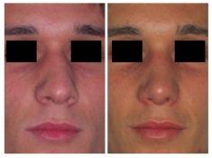 Settoplastica (operazione al setto nasale) - Foto del prima - Prof. Carlo Grassi