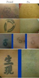 Laserowe usuwanie tatuażu i pigmentów - Zdjęcie przed - Slow Age Centrum Medycyny Estetycznej i Laserowej