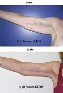 Lifting des bras - Cliché avant - Dr Yohann Derhy