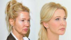 Facelift, SMAS facelifting - Fotka pred - Klinika YES VISAGE - klinika estetickej medicíny a plastickej chirurgie