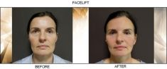 Facelift - Photo before - FORMÉ Clinic