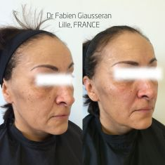 Lifting non chirurgical (Liquid facelift) - Injections d