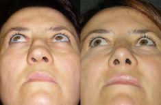 Rinoplastica - La punta è stata resa triangolare e più raffinata. La cicatrice alla columella è praticamente invisibile.