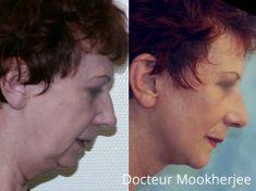 Lifting du visage - Cliché avant - Dr Robin Mookherjee