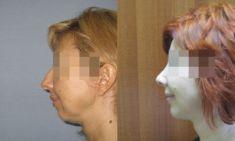 Operacje plastyczne brody  - Zdjęcie przed
