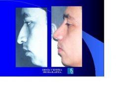 Mentoplastia - Foto Antes de - Dr. Luis Pavajeau Muñoz
