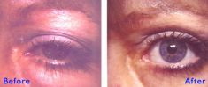 Eyelid surgery (Blepharoplasty) - Photo before - Azim Jahangir Khan M.D.