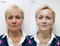 Výplně na bázi kyseliny hyaluronové - Omlazení obličeje - redukce vrásek u zralé ženy s velkou povadlostí pleti a množstvím hlubokých vrásek. Použitý materiál - výplně na bázi kyseliny hyaluronové:  2x1ml konturační výplně pro modelaci lícních kostí + 2x1ml konturační výplně pro modelaci dolní čelisti. Do nosoretní rýhy 2x1ml objemové výplně a do okolních vrásek 2x3ml výplně. Fotky z archivu AURUM AESTHETIC CLINIC - MUDr. Milena Vojtíšková Doporučen domáci klidový režim 3dny (nenavštěvovat saunu, kosmetiku a vynechat fyzickou aktivitu)