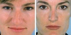 Cirugía de la nariz (Rinoplastia) - Foto Antes de - Dr. Ramón Vila-Rovira