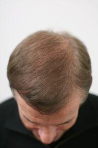 Traitements de la chute des cheveux - Cliché avant - Dr. Paul Benet