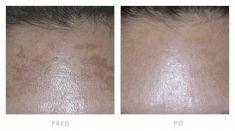 Laserové odstránenie tetovania a pigmentácií - Fotka pred - Klinika YES VISAGE - klinika estetickej medicíny a plastickej chirurgie