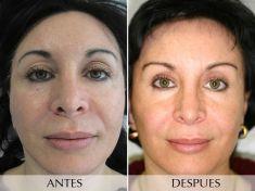 Botox/Dysport - Eliminar arrugas - Foto Antes de - Clínica Planas