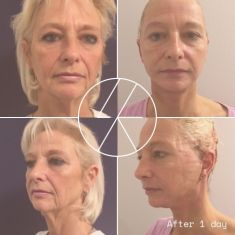 Neck lift - Photo before - MUDr. Lucie Kalinová PhD.