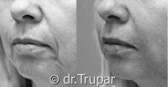 Výplně na bázi kyseliny hyaluronové - fotka před - MUDr. Evžen Trupar Ph.D.