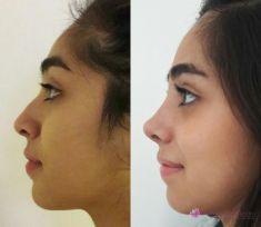 Cirugía de la nariz (Rinoplastia) - Foto Antes de - Dr. Juan Francisco Tommasino