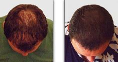 Hair Transplant - Photo before - Raghu Reddy M.D., MBBS, MRCGP