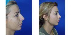 Rinoplastika (operacija nosa) - Fotografija prije - Violeta Skorobać Asanin MD, PhD