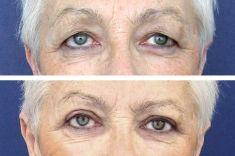 Operácia očných viečok (Blepharoplastika) - Fotka pred - MUDr. Jozef Hedera