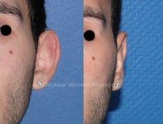 Otoplastie (Chirurgie esthétique des oreilles) - Cliché avant - Dr Vincent Masson